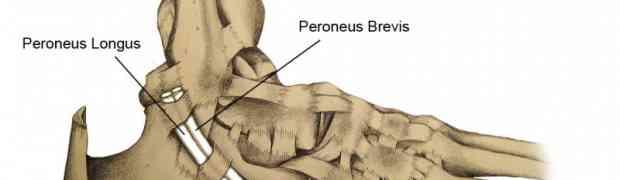 Paroneal Tendonitis