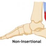 non-insertional achilles tendonitis