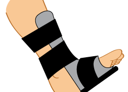Night Splints for Plantar Fasciitis