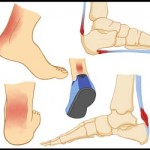 Achilles-Tendonitis-Collage