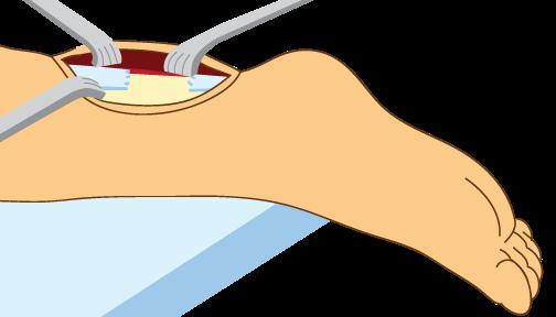 Achilles_Tendon_Surgery