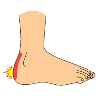 Heel_Bursitis_Plantar-Fasciitis_Signs