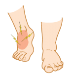 Osteochondroses of the Foot & Ankle