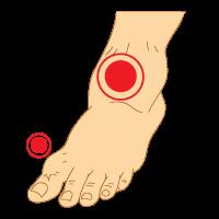 Osteoarthritis_of_Ankle_Foot_Osteoarthritis