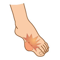 Gout-of-the-foot_Signs