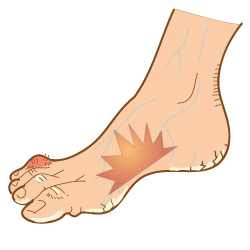 Aging_Feet