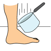 Lisfranc Injuries