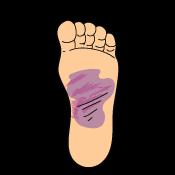 Signs_Symptoms