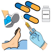 mortons-neuroma-surgey_alternative
