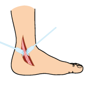 Posterior Tibial Tendon Surgery