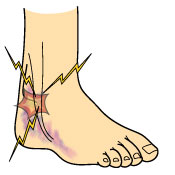 peroneal-tendon-subluxation_signs