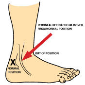 peroneal-tendon-subluxation_what_is