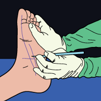 what_is_plantar_fascia_release