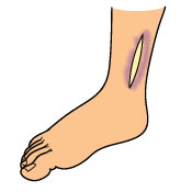 total-ankle-replacement_restrictions