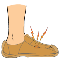 ganglion-cysts-in-the-feet_signs