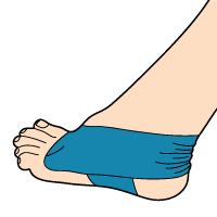 taping-applications-peroneal