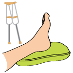 The Absolute Best Plantar Fasciitis Treatments