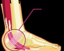 Plantar Fasciitis -- Differential Diagnosis